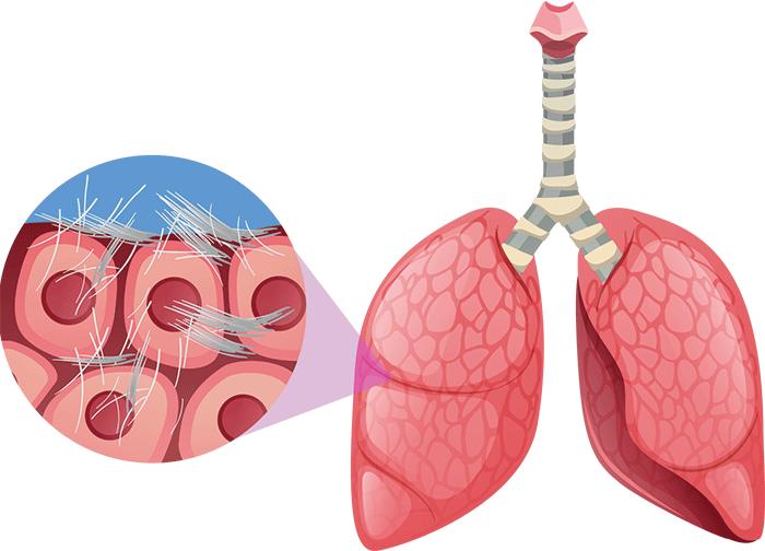 asbestgefahr lunge vernarbung
